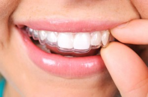 invisalign-orthodontics